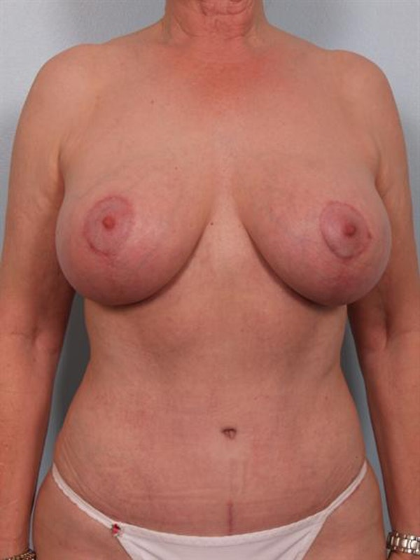 Mommy Makeover Gallery - Patient 1310782 - Image 2