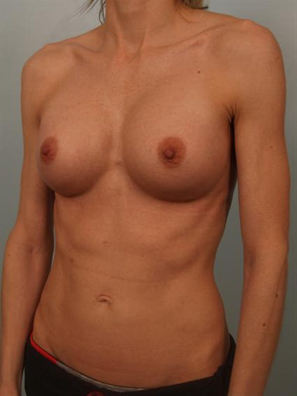Breast Augmentation Gallery - Patient 1310786 - Image 4