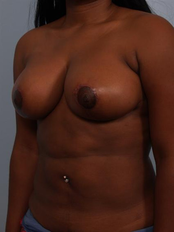 Breast Reduction Gallery - Patient 1310785 - Image 4