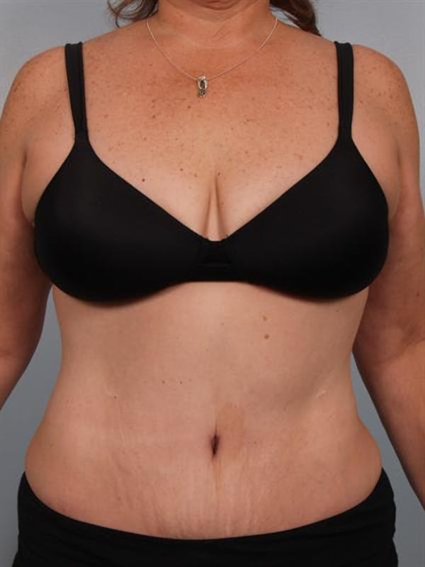 Power Assisted Liposuction Gallery - Patient 1310783 - Image 2