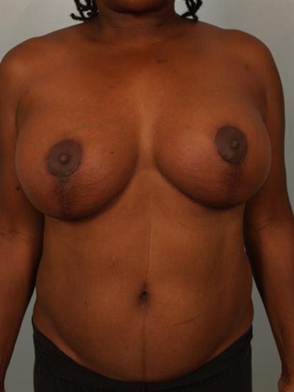 Complex Breast Revision Gallery - Patient 1310781 - Image 2