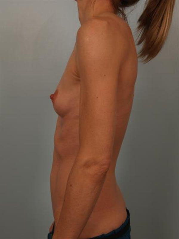 Breast Augmentation Gallery - Patient 1310786 - Image 5