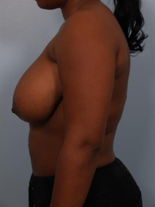 Breast Reduction Gallery - Patient 1310785 - Image 5