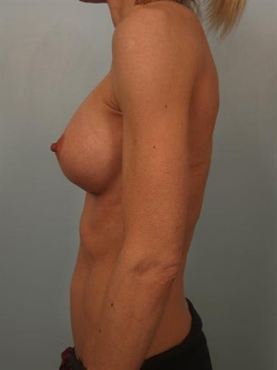 Breast Augmentation Gallery - Patient 1310786 - Image 6
