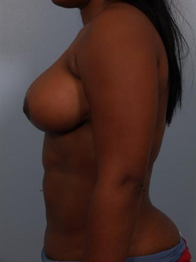 Breast Reduction Gallery - Patient 1310785 - Image 6