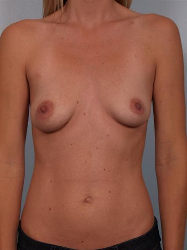 Breast Lift Gallery - Patient 1310787 - Image 1
