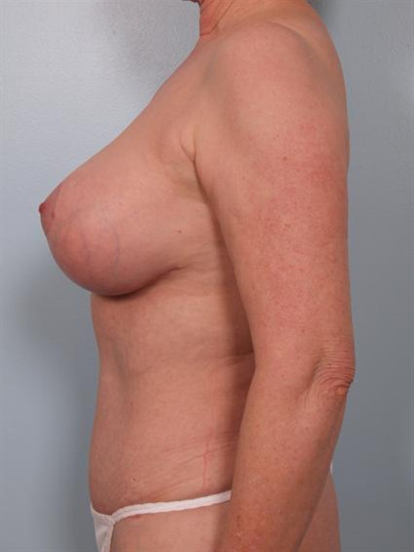 Mommy Makeover Gallery - Patient 1310782 - Image 4