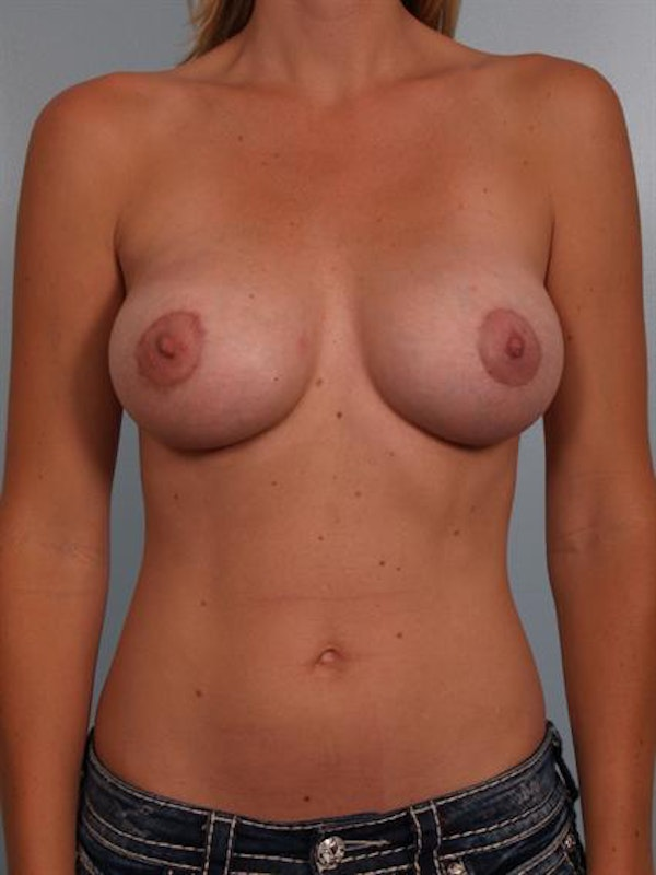 Breast Lift Gallery - Patient 1310787 - Image 2
