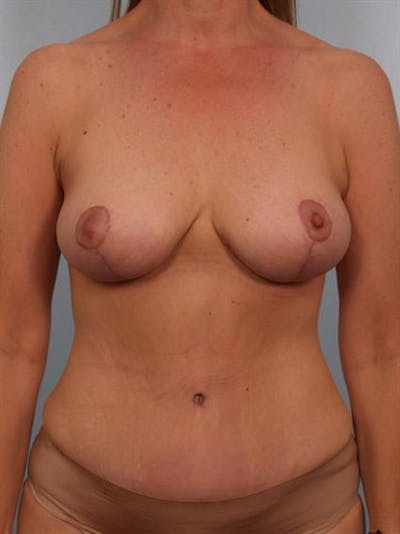 Tummy Tuck Gallery - Patient 1310788 - Image 2