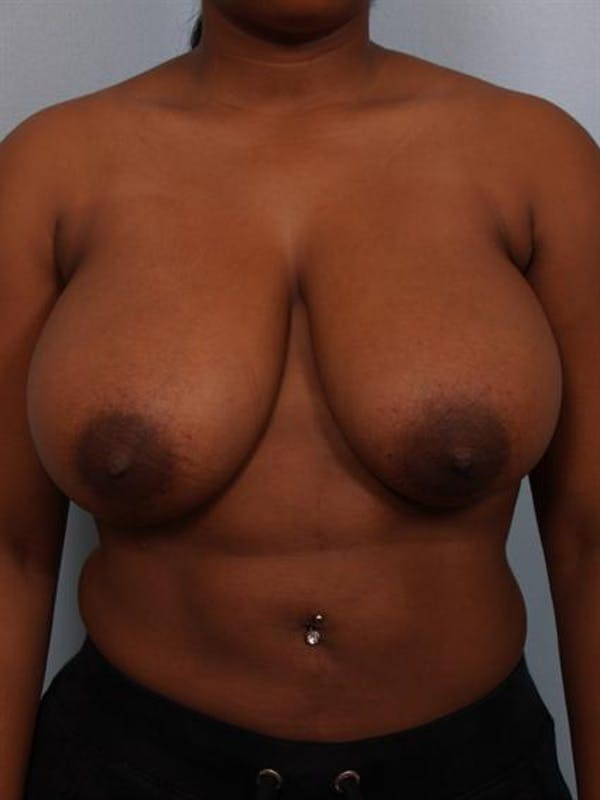 Breast Reduction Gallery - Patient 1310785 - Image 1