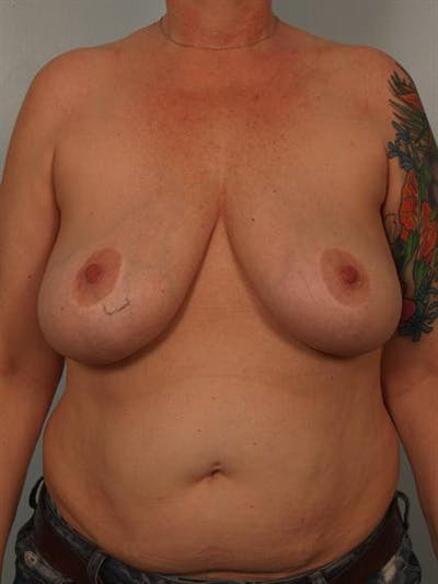 Complex Breast Revision Gallery - Patient 1310790 - Image 1