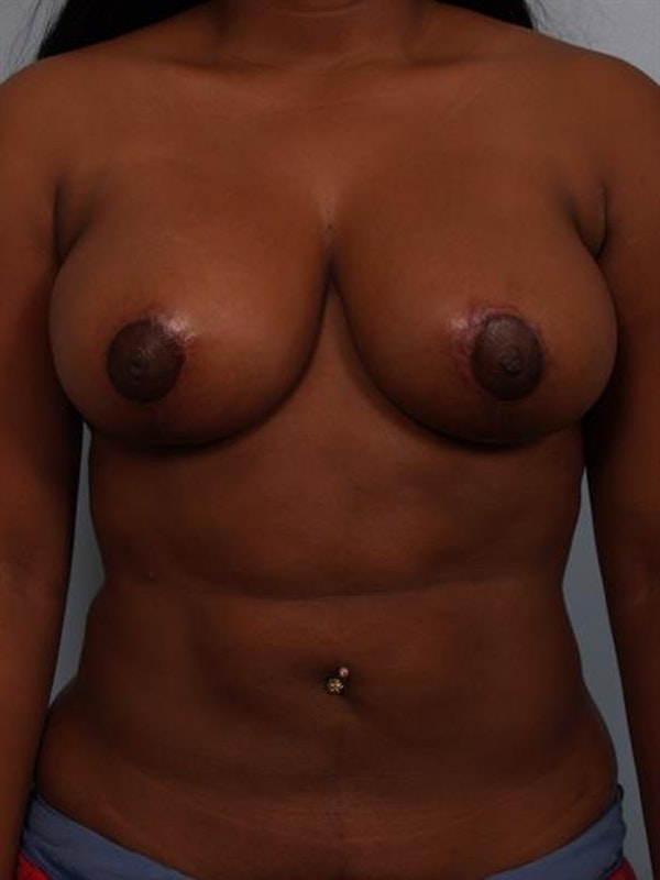 Breast Reduction Gallery - Patient 1310785 - Image 2