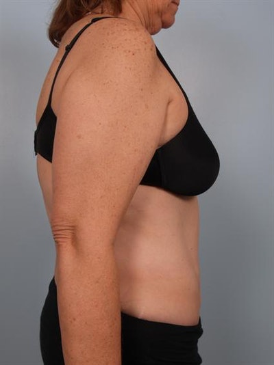 Power Assisted Liposuction Gallery - Patient 1310783 - Image 6