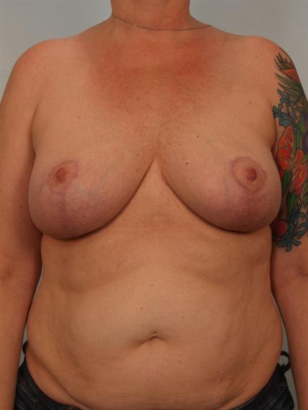 Complex Breast Revision Gallery - Patient 1310790 - Image 2