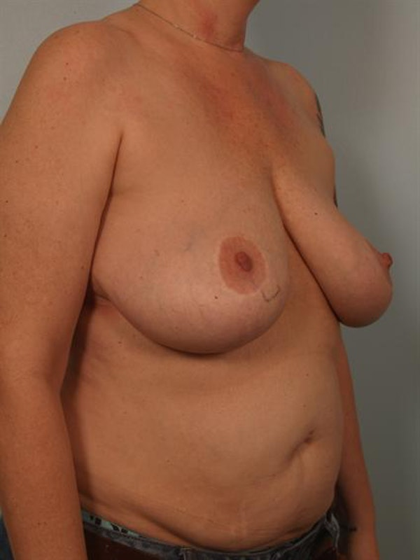 Complex Breast Revision Gallery - Patient 1310790 - Image 3