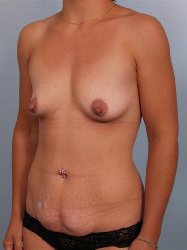 Mommy Makeover Gallery - Patient 1310794 - Image 3