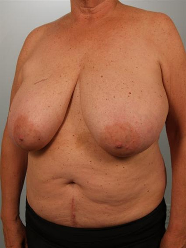 Breast Reduction Gallery - Patient 1310793 - Image 3