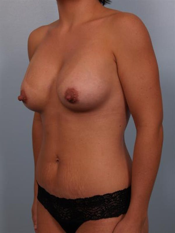 Mommy Makeover Gallery - Patient 1310794 - Image 4