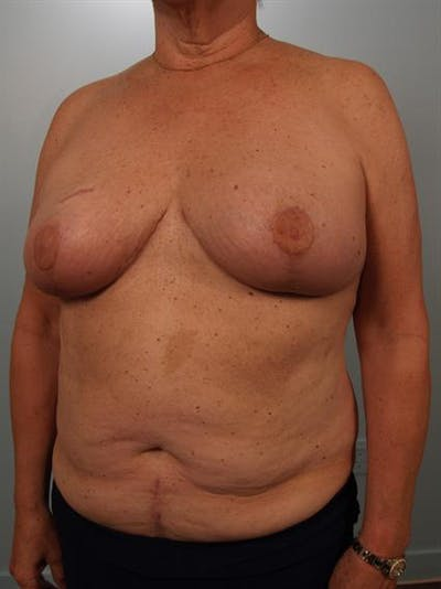 Breast Reduction Gallery - Patient 1310793 - Image 4