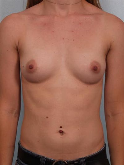 Breast Augmentation Gallery - Patient 1310796 - Image 1