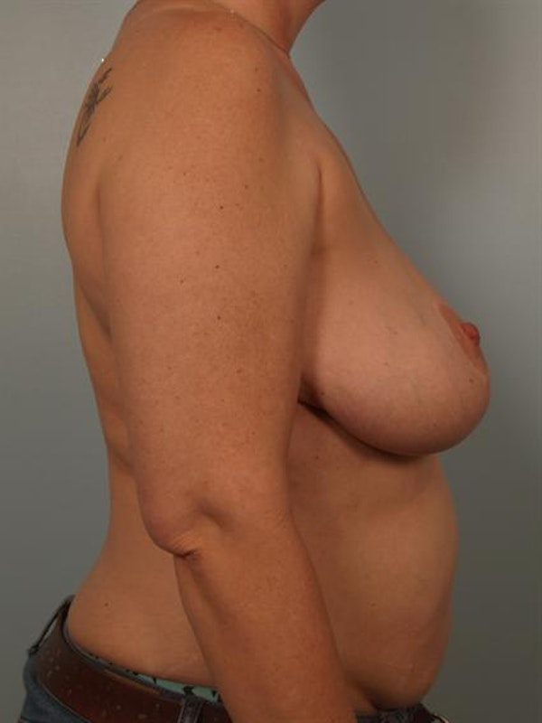 Complex Breast Revision Gallery - Patient 1310790 - Image 5