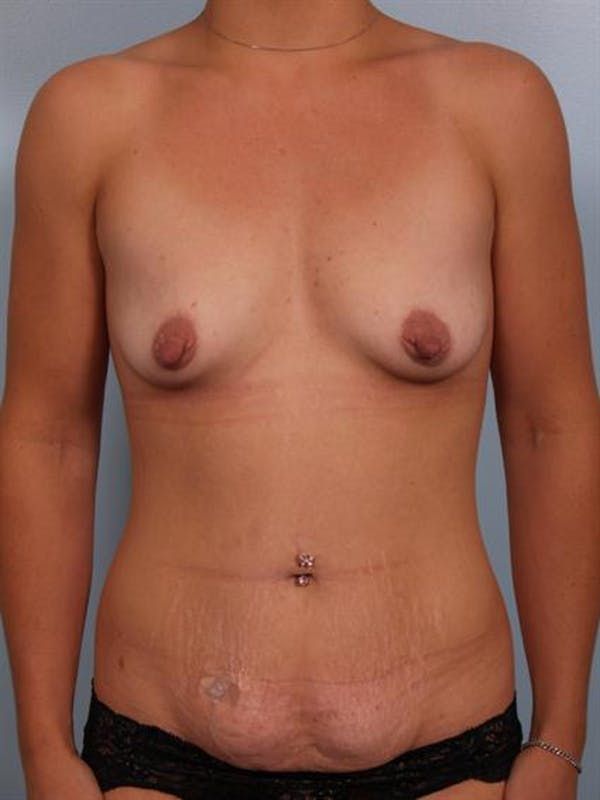 Mommy Makeover Gallery - Patient 1310794 - Image 1
