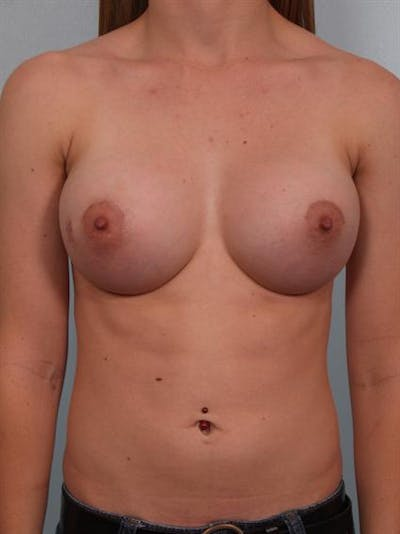 Breast Augmentation Gallery - Patient 1310796 - Image 2