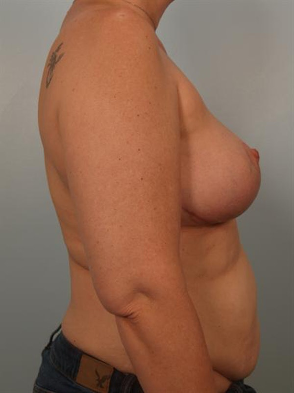 Complex Breast Revision Gallery - Patient 1310790 - Image 6