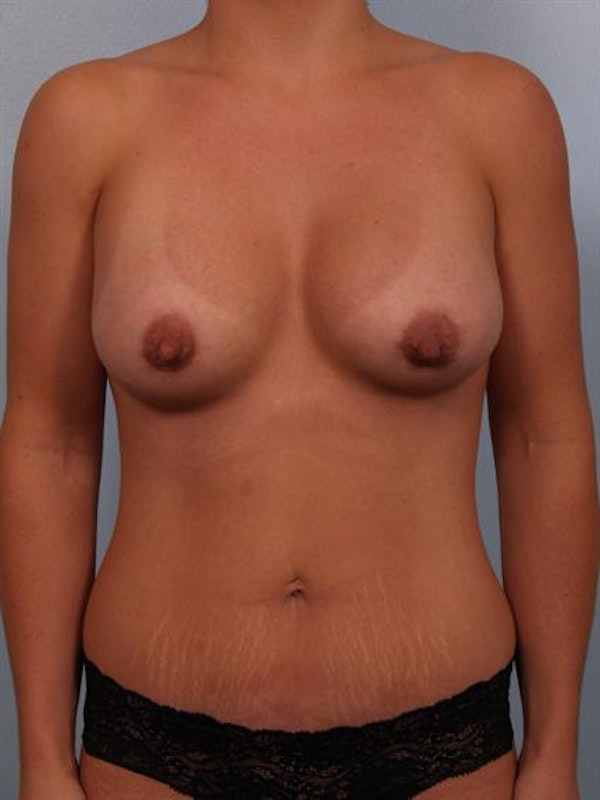 Mommy Makeover Gallery - Patient 1310794 - Image 2
