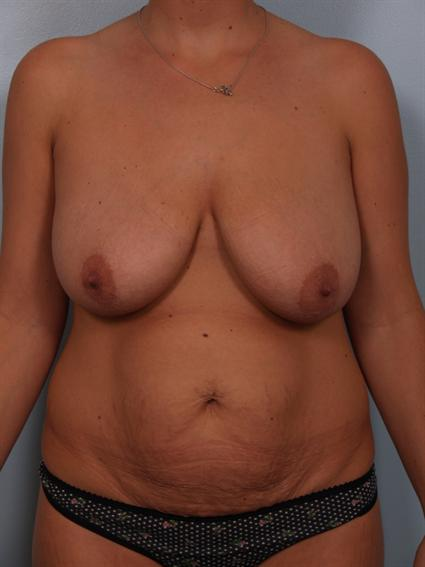 Image1 - Before and after image of Tummy Tuck by Dr. Cohen.