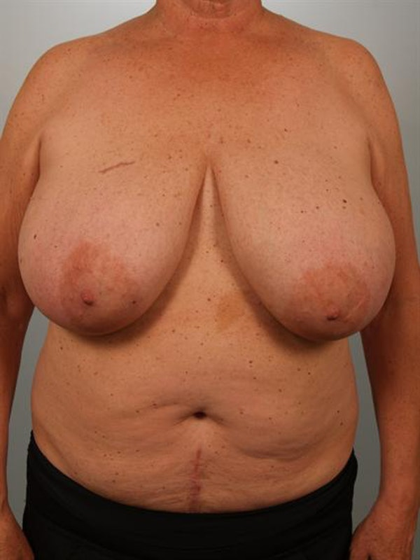 Breast Reduction Gallery - Patient 1310793 - Image 1