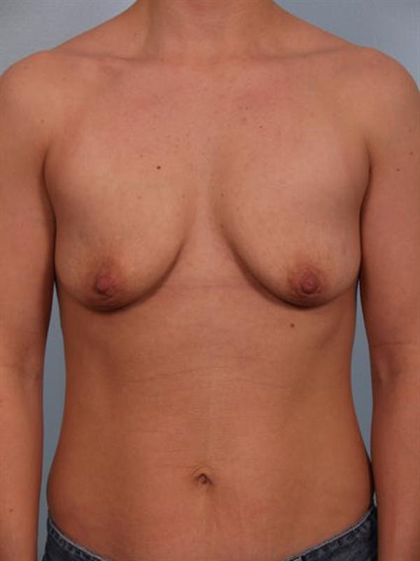 Breast Lift Gallery - Patient 1310797 - Image 1