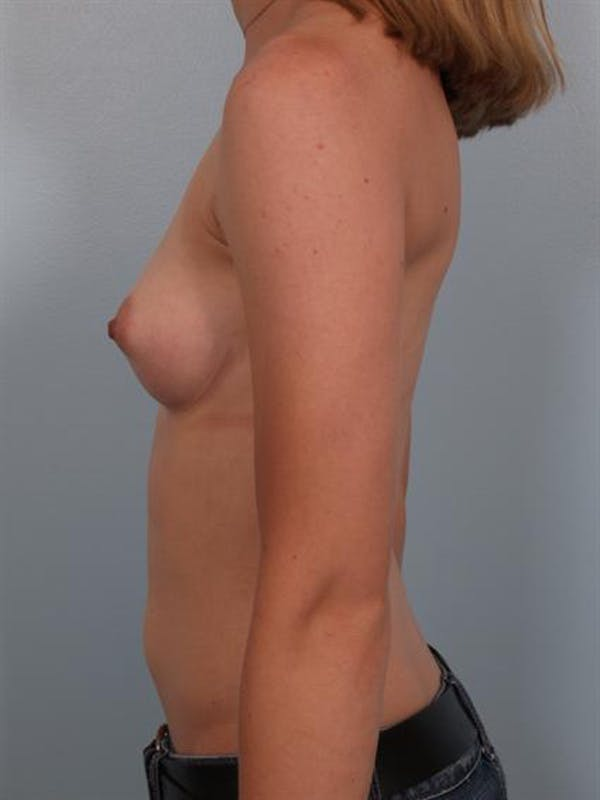 Breast Augmentation Gallery - Patient 1310796 - Image 3