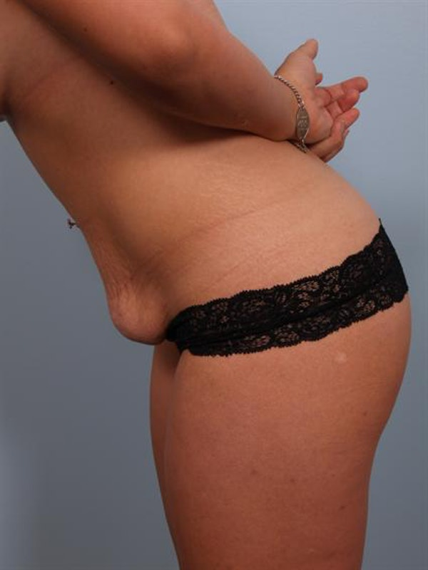 Mommy Makeover Gallery - Patient 1310794 - Image 5