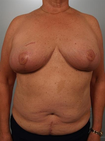 Breast Reduction Gallery - Patient 1310793 - Image 2