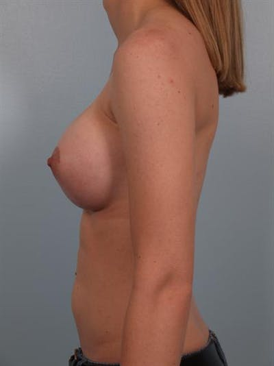 Breast Augmentation Gallery - Patient 1310796 - Image 4