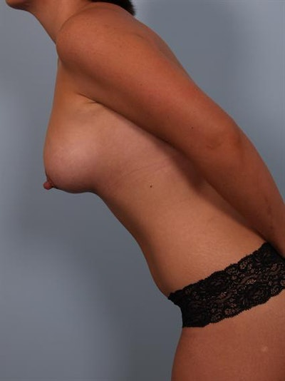 Mommy Makeover Gallery - Patient 1310794 - Image 6