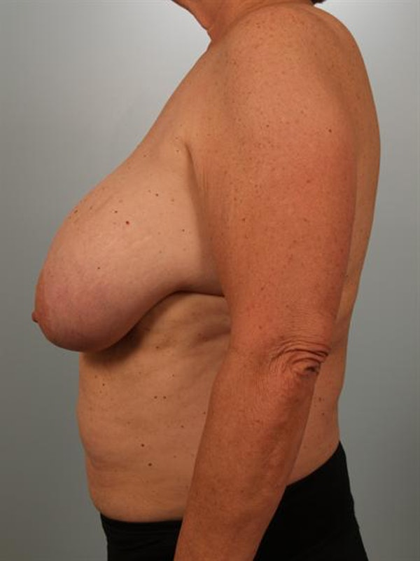 Breast Reduction Gallery - Patient 1310793 - Image 5