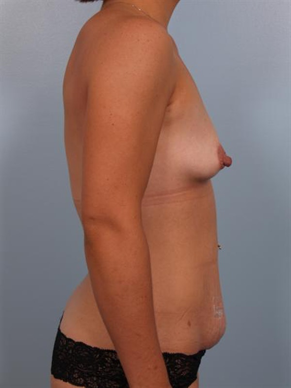 Mommy Makeover Gallery - Patient 1310794 - Image 7