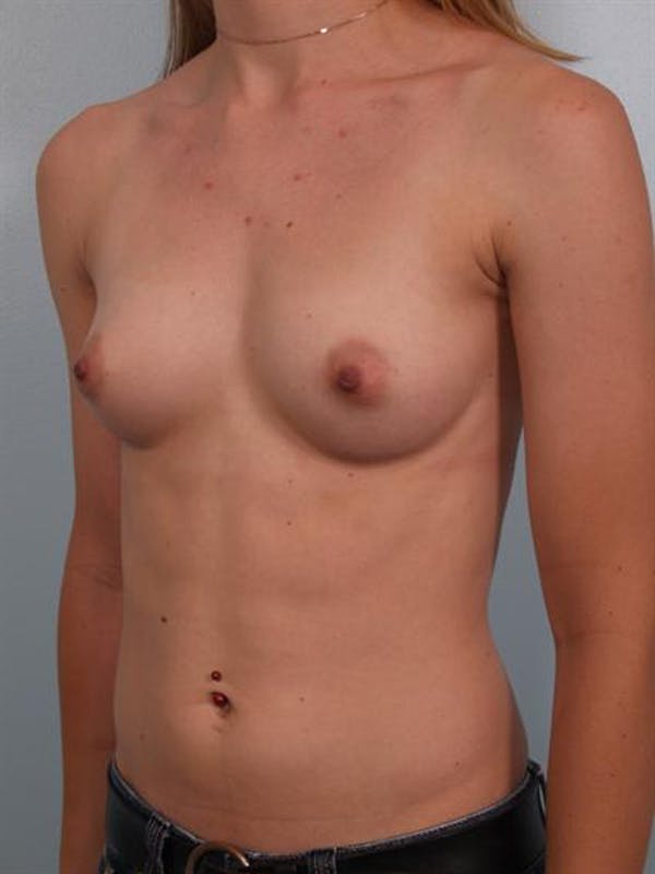 Breast Augmentation Gallery - Patient 1310796 - Image 5