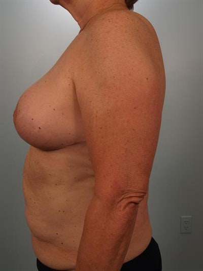 Breast Reduction Gallery - Patient 1310793 - Image 6