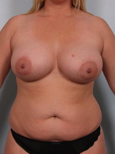 Complex Breast Revision Gallery - Patient 1310799 - Image 1