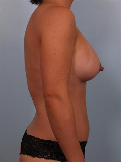 Mommy Makeover Gallery - Patient 1310794 - Image 8