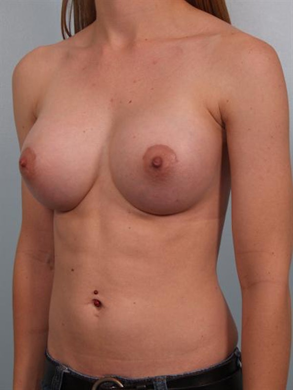 Breast Augmentation Gallery - Patient 1310796 - Image 6