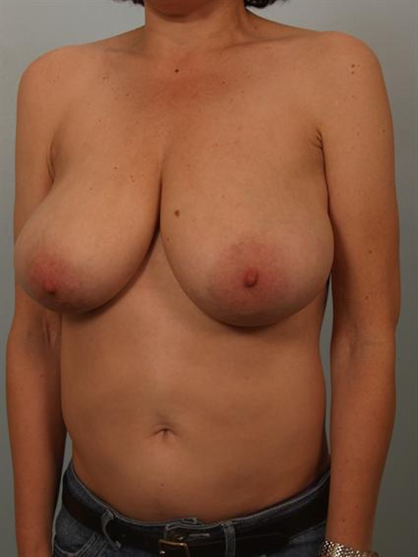 Breast Reduction Gallery - Patient 1310802 - Image 3