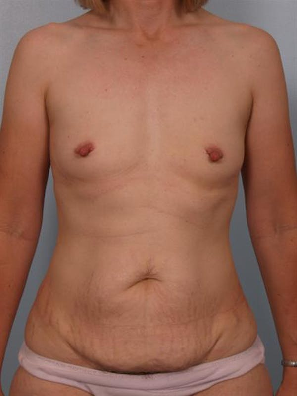 Mommy Makeover Gallery - Patient 1310800 - Image 1