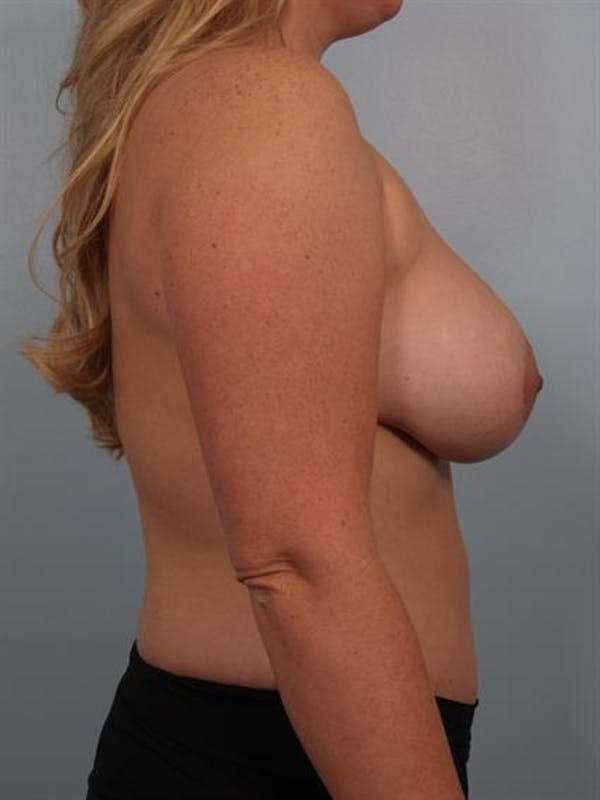 Complex Breast Revision Gallery - Patient 1310799 - Image 4