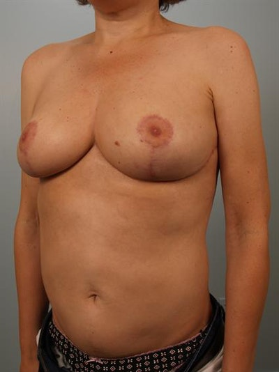 Breast Reduction Gallery - Patient 1310802 - Image 4