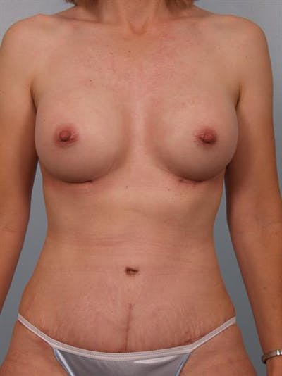 Mommy Makeover Gallery - Patient 1310800 - Image 2