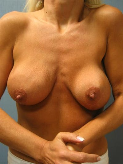 Breast Lift Gallery - Patient 1310805 - Image 1